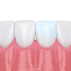 Bonding Oak Tree Dentistry Naples Fl